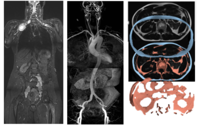 Whole Body – MRI Impact On Modern Patient Care – Educational meeting in collaboration with SSSR – February 1st, 2020, Zurich